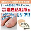 巻き爪 ブロック テープ ワイヤー 巻き爪シール  1ヶ月ケア  ネコポス 送料180円