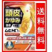 ムヒHDm 30ml 送料無料 頭皮の痒み 湿疹 指定第2類医薬品