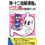 胃潰瘍原因の画像