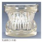 透明乳歯 永久歯交換期模型 乳歯期(3歳頃)