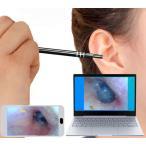 送料無料 耳かき カメラ スマホ 高画質 スコープ みみかき 顕微鏡 肌 頭皮 毛穴 鼻 耳掃除 内視鏡 電子耳鏡