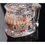 歯列模型 疾患展示模型 人体解剖モデル