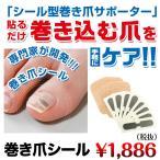 巻き爪シール 巻きづめ 矯正 痛み ブロック 防止 ワイヤー ハード 巻き爪クリップ 巻き爪用クリップ 巻き爪ブロック テープ 巻き爪ワイヤーガード