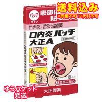 【ゆうパケット送料込み】【第3類医薬品】口内炎パッチ 大正 A 10枚