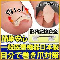 巻き爪 治し方 治療 ロボ 自分で ワイヤー クリップ 矯正 器具 テープ 一般医療機器 日本製 巻き爪ワイヤーガード
