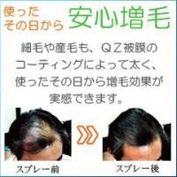 超耐水増毛スプレー「QZジェントリー50ml」薄毛隠し 円形脱毛症 かつら ふりかけ ボリュームアップ 累計販売20万人突破の増毛スプレー 男性 女性|reando|02