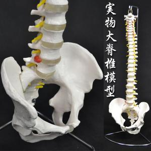骨格模型 人体模型 脊髄模型 神経 ヘルニア 椎間板付 ###人体模型XC-105☆###|ai-mshop