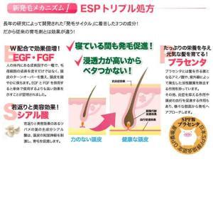 AiB スカルプエッセンス (頭皮用美容液) 60ml aib21 03