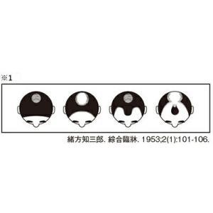 【第1類医薬品】スカルプD メディカルミノキ5(問診9の「上記※1」は商品画像2枚目にございます)発毛剤 発毛促進 育毛剤 薄毛 抜け毛|angfa|02
