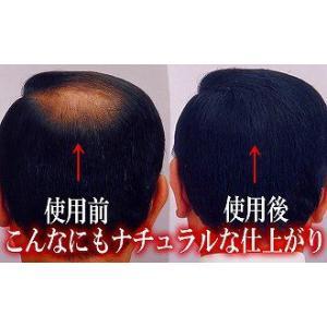 髪や頭皮にやさしい エルファーボリュームアップ増毛スプレー 茶 150g アロエエキス配合|aqua-life|02