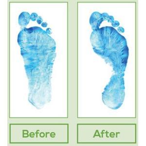 インソール 足底筋膜炎 扁平足 外反母趾 7段階フルタイプ 立ち仕事 内反小趾 足底板 開張足 モートン病 中足骨頭部痛 踵骨棘 浮き指 中敷き|barefootscience|11