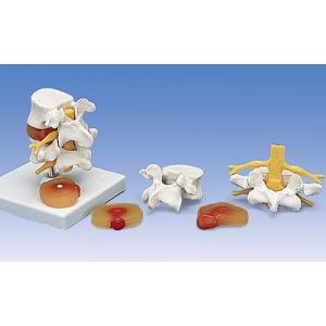 【感謝価格】3B社 【人体模型】 腰椎模型 椎間板ヘルニア腰椎モデル (a76)