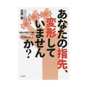あなたの指先、変形していませんか? 指先が変形して痛い「ヘバーデン結節」の予防と治し方 / 笠原 巖 著|books-ogaki