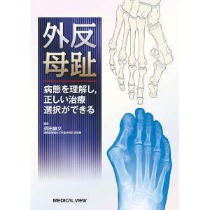 外反母趾 病態を理解し,正しい治療選択ができる/須田康文