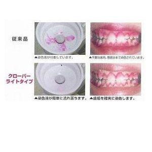 【佐藤歯材】 クローバー歯垢染め出し液ライト 5ml×1本  【歯垢染色液】|e-dent|03