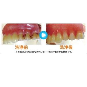 【和田精密歯研】【歯科用】 入れ歯爽快 ステインクリーン 1箱 2.5g×30包 【義歯洗浄剤】|e-dent|03