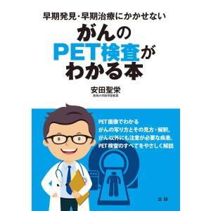 がんのPET検査がわかる本 電子書籍版 / 安田聖栄(著)|ebookjapan