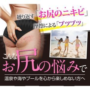 OK-II オッケーツー 医薬部外品 おしりニキビ 背中ニキビ 乳液|fainez-net|02