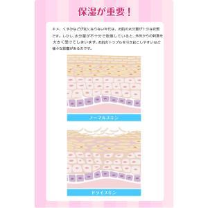 シミノンパック 顔しみ消し しみ シミクリームパック しみ取る くすみ取り 角質取る ハイドロキノン しみ対策 シミクリーム 男女兼用 限定2本セット|fukumimi-shoten|05