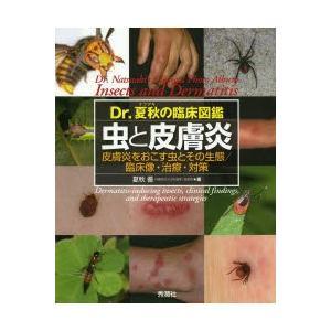 Dr.夏秋の臨床図鑑虫と皮膚炎 皮膚炎をおこす虫とその生態/臨床像・治療・対策|ggking