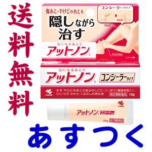アットノンTコンシーラータイプ 10g|gionsakura