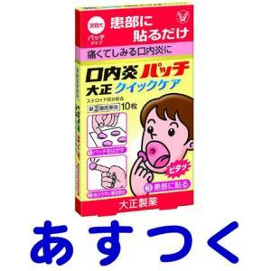 口内炎パッチ 大正クイックケア 10枚(抗炎症ステロイド配合) gionsakura