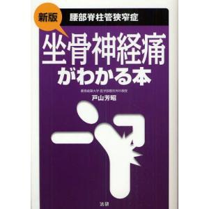 坐骨神経痛がわかる本 腰部脊柱管狭窄症
