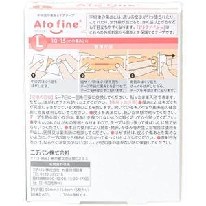 ニチバン アトファイン Lサイズ 6枚入り|idr-store
