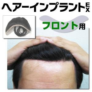 頭皮一体増毛 ヘアーインプラントEX フロント用 ※装着にはテープかシリコンが必要です|increasehair