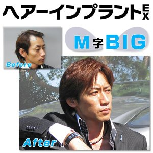 頭皮一体増毛 ヘアーインプラントEX M字部用BIG|increasehair