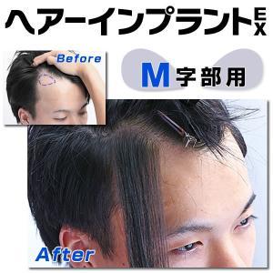 部分ウィッグ 頭皮一体増毛 ヘアーインプラントEX M字部用 かつら|increasehair