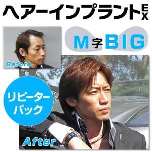 ヘアーインプラントEX M字部用BIG リピーターパック|increasehair