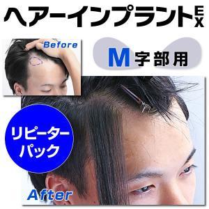 ヘアーインプラントEX M字部用 リピーターパック|increasehair