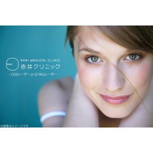【表参道】CO2レーザーorQ-YAGレーザー☆シミ・ホクロ・イボ治療