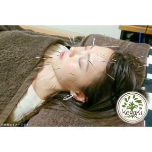 【自由が丘】美容鍼☆電気鍼で小顔&リフトアップへ★マスクの肌荒れ/歯ぎしりも解消