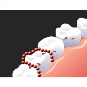 ブライトアップジェル 3本セット‐薬用 ホワイトニング 歯磨きジェル 歯槽膿漏・歯肉炎 歯磨き粉 黄ばみ 歯垢除去 色素沈着 ヤニ コーヒー 薬用 医薬部外品|kurazo|05