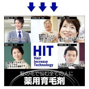育毛剤 HIT - Hair Increase Technology - ヘアトニック|lunabeauty|02