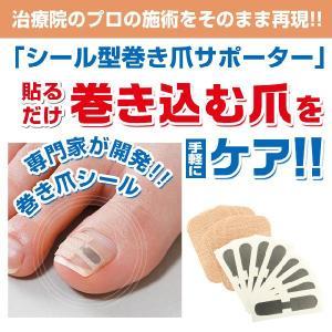 巻き爪 ブロック テープ シール ワイヤー 巻き爪シール (1ヶ月ケア) DM便発送 送料無料|maone