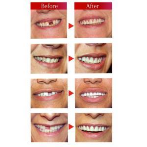 インスタントスマイル 下歯用 上歯用 スマイル 入れ歯 男女兼用 つけ歯 仮歯 女性用 男性用 前歯 い|matsucame|02