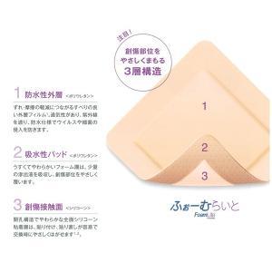 ふぉーむらいと FoamLite 5x5cm 00479 1箱10枚入 コンバテック【条件付返品可】|merecare|02