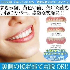 仮歯 付け歯 前歯 入れ歯 ワンタッチ ホワイトニング 歯 欠損 上歯 下歯 つけ歯 インスタントスマイル