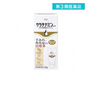 ケラチナミンコーワ20%尿素配合クリーム  30g (チューブタイプ) 第3類医薬品