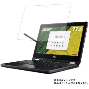 Acer Chromebook Spin 11 R751TN-N14N 2017年8月モデル 用 N...