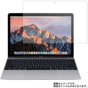 Apple MacBook 12インチ 2017年モデル 用 10 反射防止 マットバブルレス液晶保護フィルム mobilewin