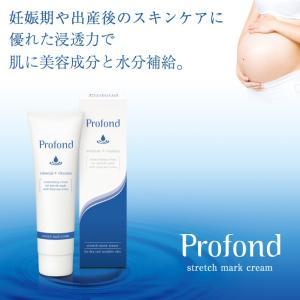 Profond(プロフォン) ストレッチマーククリーム  クリーム ボディケア 乾燥 保湿 妊娠線 予防 化粧品 シェモア|motu-play