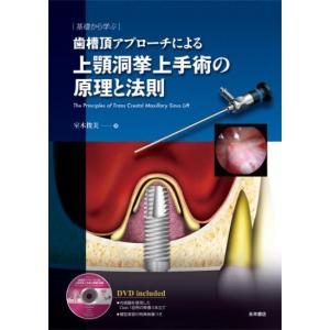 基礎から学ぶ 歯槽頂アプローチによる上顎洞挙上手術の原理と法則|nagasueshoten