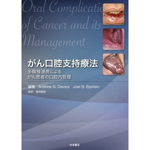 がん口腔支持療法 多職種連携によるがん患者の口腔内管理|nagasueshoten