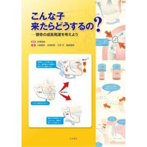 こんな子 来たらどうするの? ―顎骨の成長発達を考えよう nagasueshoten