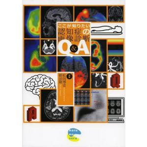 ※ゆうメール利用不可※アルツハイマー型認知症の進行度はどう判断する?レビー小体型認知症を見分けるポイ...