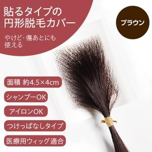 医療用かつら 円形脱毛症を隠す 部分ウィッグ ヘアコンタクトメディカル ブラウン